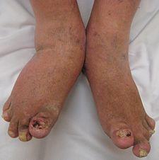 Klinický obraz těžké psoriatické artritidy
