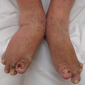English: Severe psoriatic arthritis