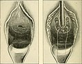 The Principles and practice of gynecology - for students and practitioners (1904) (14581563267).jpg