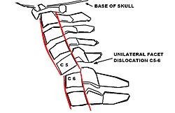 Neurology and Neurosurgery/Incomplete Spinal Cord Injuries ...