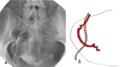 Резкая извитость маточной артерии при ЭМА.png