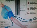 ضغط الدم 2.jpg