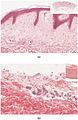 502ab Thin Skin versus Thick Skin.jpg