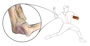 Ulnar collateral ligament of elbow joint - Image: Anatomy of the ulnar collateral ligament in the pitcher's elbow