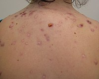 A photograph of a human back with nodular acne