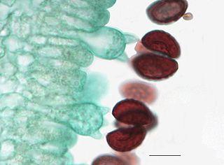 Mikroskopický záber na výtrusnice s výtrusmi