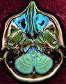 Brain MRI 112010 rgbca.png