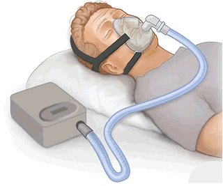 Positive airway pressure Mechanical ventilation in which airway pressure is always above atmospheric pressure