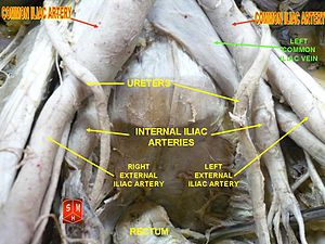 Common iliac artery
