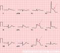 De-AMI anterior (CardioNetworks ECGpedia).png