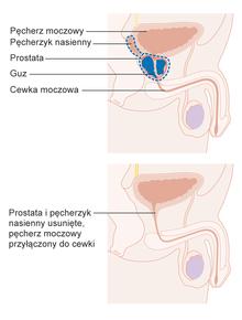 Rak gruczołu krokowego – Wikipedia, wolna encyklopedia