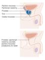 Diagram przed i po zabiegu radykalnej prostatektomii CRUK 473 pl.png