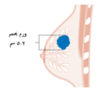 Diagram showing stage T2 breast cancer CRUK 252-ar.png