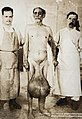 Elephantiasis of the scrotum and leg, the sufferer stands naked held by two men. Photograph, ca. 1910.jpg