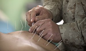 Flickr - Official U.S. Navy Imagery - Cmdr. Yevsey Goldberg conducts an acupuncture procedure..jpg