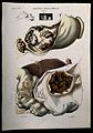 Four sections of diseased stomach (cancer), numbered for key Wellcome V0009841EL.jpg