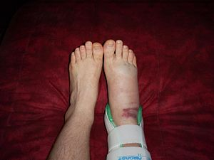 English: My freshly sprained ankle of about 6 ...