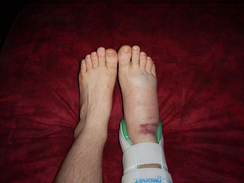 Boy's Swollen Foot