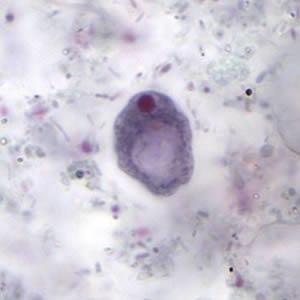 Iodamoeba - Image: I.Butschlii cysts 1