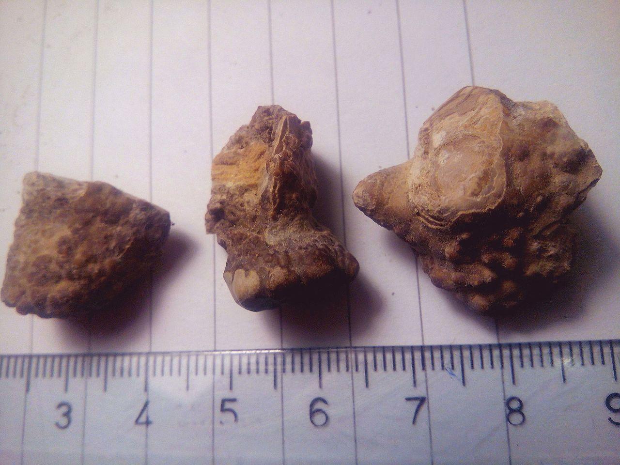 File Kidney Stones   Renal Calculi     U0411 U0443 U0431 U0440 U0435 U0436 U043d U0438  U043a U0430 U043c U0435 U045a U0430 13