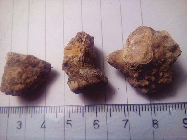 https://upload.wikimedia.org/wikipedia/commons/thumb/7/7f/Kidney_stones_(_renal_calculi_),_%D0%91%D1%83%D0%B1%D1%80%D0%B5%D0%B6%D0%BD%D0%B8_%D0%BA%D0%B0%D0%BC%D0%B5%D1%9A%D0%B0_13.jpg/640px-Kidney_stones_(_renal_calculi_),_%D0%91%D1%83%D0%B1%D1%80%D0%B5%D0%B6%D0%BD%D0%B8_%D0%BA%D0%B0%D0%BC%D0%B5%D1%9A%D0%B0_13.jpg