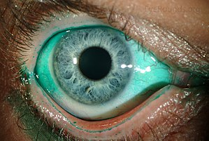 e0dc7484bed Diffuse lissamine green staining in a person with severe dry eye.