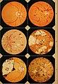 Lehrbuch der praktischen Augenheilkunde (1867) (14761284236).jpg