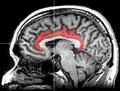 MRI cingulate cortex.png