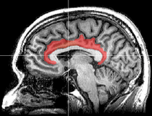 cingulate cortex - wikipedia, Cephalic Vein