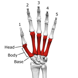 Metacarpal bones (left hand) 01 palmar view with label.png