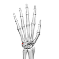 Pisiform bone (left hand) 02 dorsal view.png