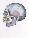 Side view of the skull with posterior dislocation of jaw.