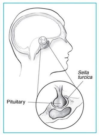 Sella turcica - Sella turcica and pituitary gland.