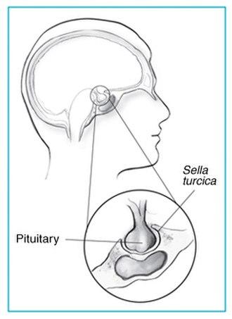 Sella turcica - Sella turcica and pituitary gland.