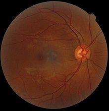 Gelber Fleck Auge Wikipedia