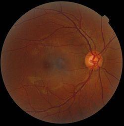 a járművezető orvosi látása