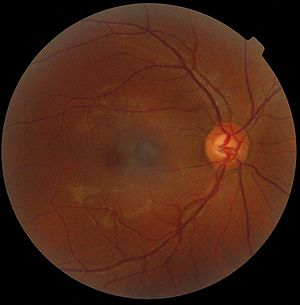 Fundus (eye) - A fundus photo, showing the optic disc as a bright area on the right where blood vessels converge. The spot to the left of the centre is the macula. The grey, more diffuse spot in the centre is a shadow artifact.
