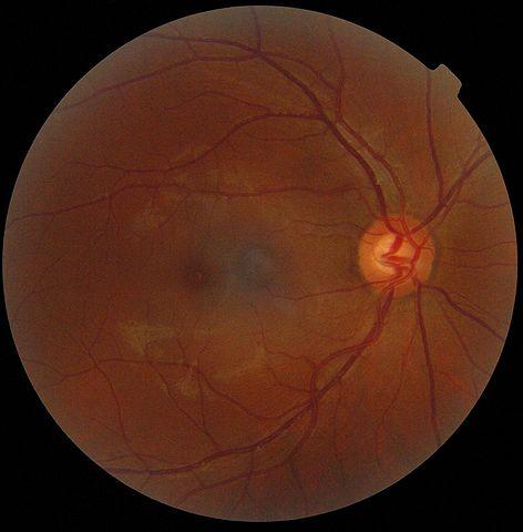 Die Retina