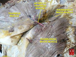 Rhomboid major muscle - Rhomboideus major muscle