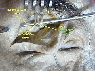Supraorbital artery - Image: Slide 3h
