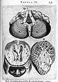 T. Bartholin, ventriculum ceribri quartum... Wellcome L0007847.jpg