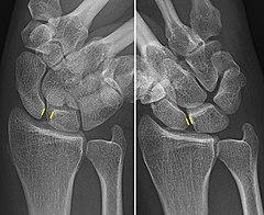 Scapholunate ligament - Wikiwand