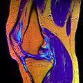 10 Knee MRI T1W TSE R T2W TSE G PDW DR TSE B.jpg