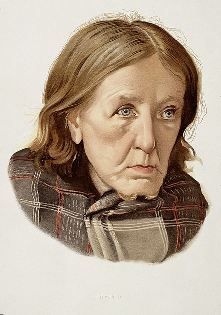 A drawing of a woman diagnosed as having dementia. A woman diagnosed as suffering from chronic dementia. Colour Wellcome L0026688.jpg