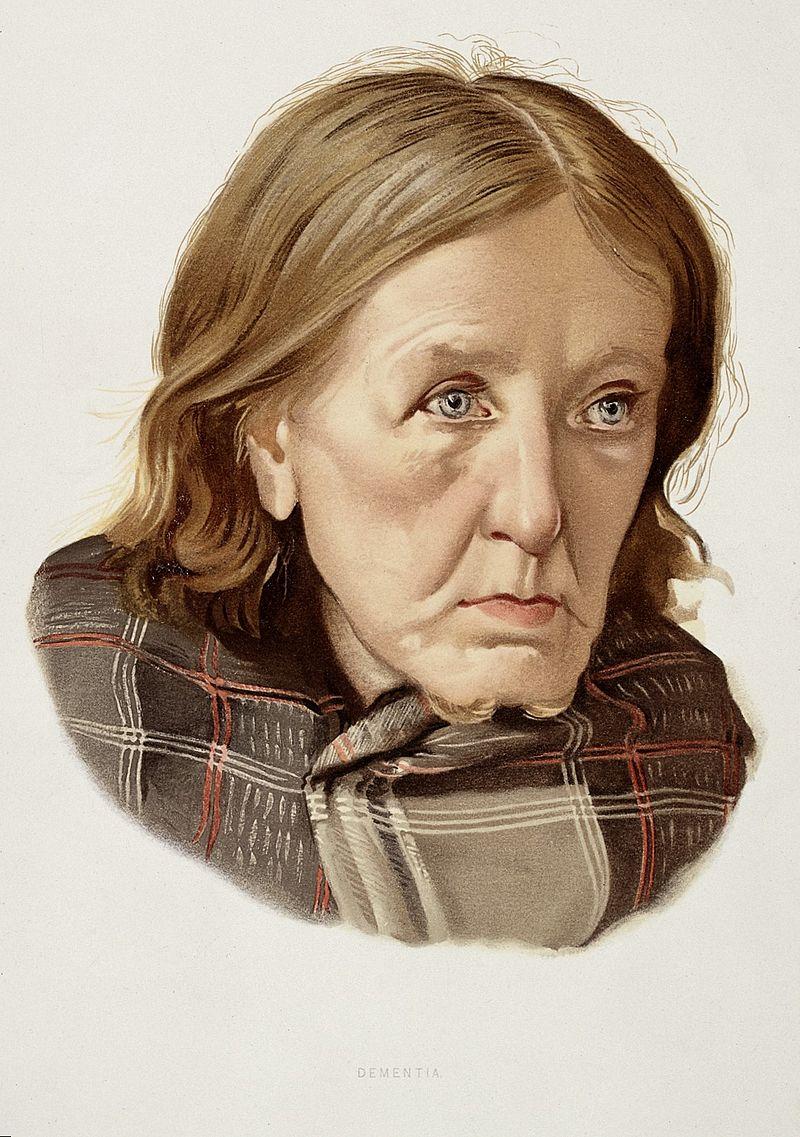 אישה שאובחנה בדימנציה, ציור מ-1890,  J. Williamson