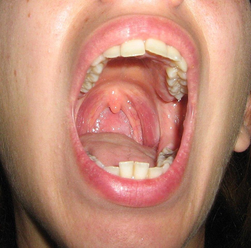 Palatine tonsil - Howling Pixel