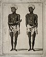 An Indian man with a headless body attached to his trunk. En Wellcome V0007399.jpg
