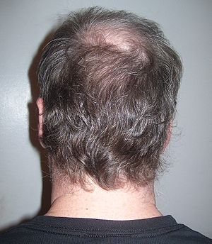 The back of a middle-aged American man's head,...