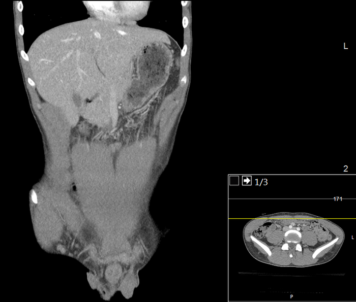 CT of a normal abdomen and pelvis, coronal plane 39.png