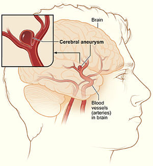 Diagram of cerebral aneurysm